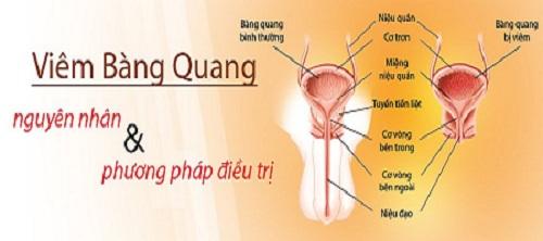Viêm bàng quang cấp và cách điều trị