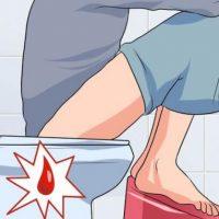 Cách chữa đi ngoài ra máu tại nhà