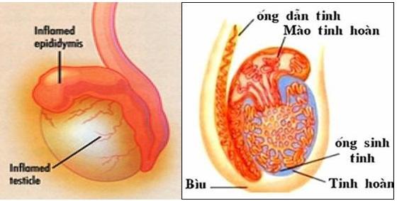 Triệu chứng đau tinh hoàn là bệnh gì