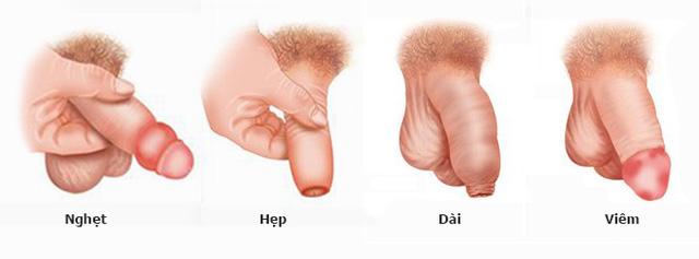 Dài da bao quy đầu là như thế nào? Nguy hại của bệnh dài da bao quy đầu