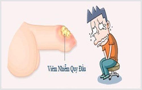 Tác hại viêm bao quy đầu ở nam giới