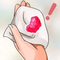 Mang thai ra máu nhưng không đau bụng có sao không?