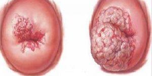 Những triệu chứng ung thư cổ tử cung khó nhận biết